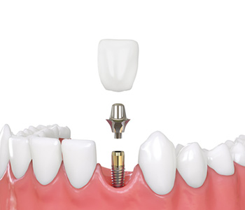 Replace missing teeth with dental implants in Pembroke Pines, FL