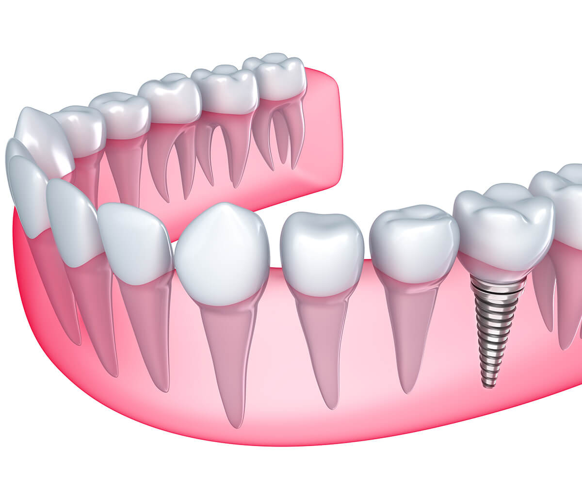 What your Pembroke Pines dentist wants you to know about dental implants