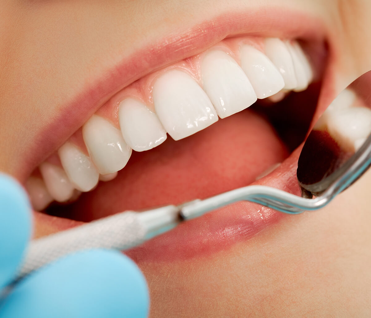 Pembroke Pines dentist helps patients improve their smiles with a professional dental whitening procedure