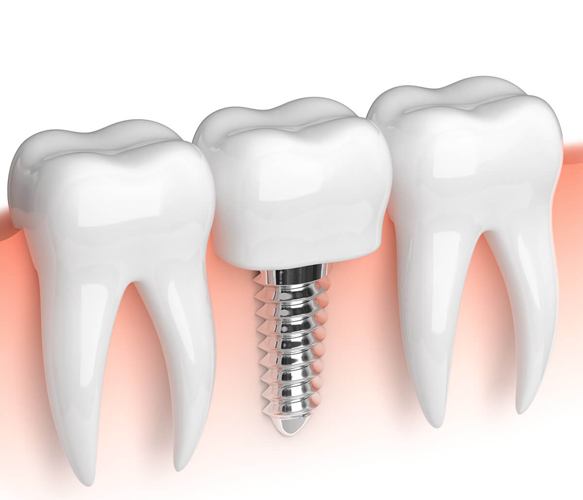 The Unpleasant Truth of Not Replacing Missing Teeth With Quality Dental Implants From Dentist in Pembroke Pines, FL