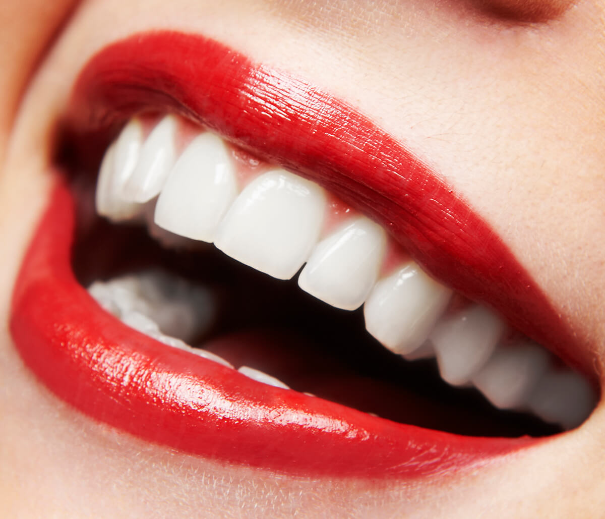 5 teeth whitening tips: Get a healthier, more dazzling smile from your dentist in Pembroke Pines